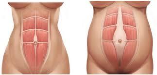 Абдоминопластика и диастаз