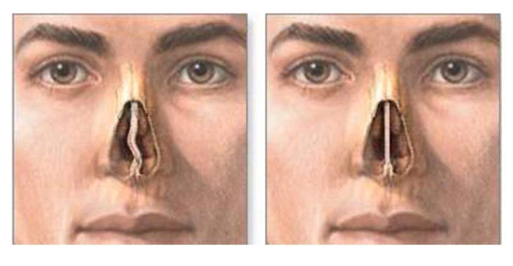 Септопластика. Искривление носовой перегородки