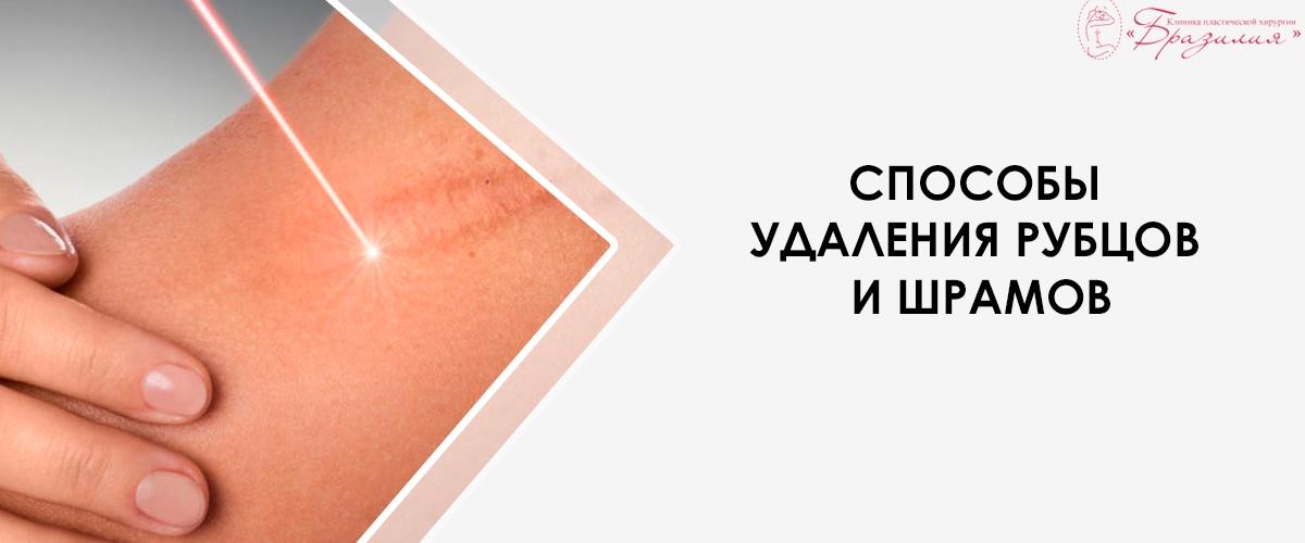 Способы удаления рубцов и шрамов