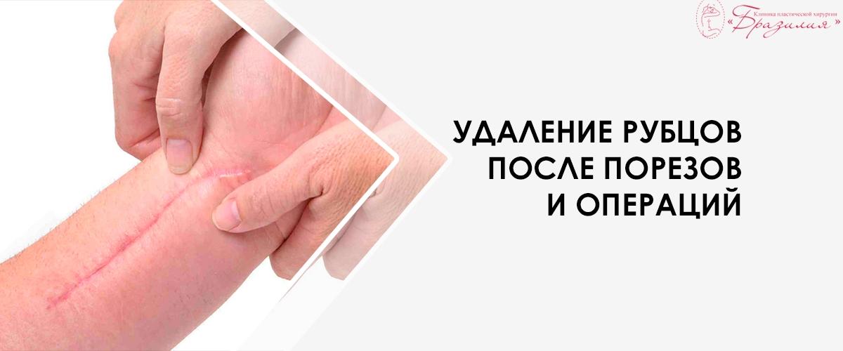 Удаление рубцов после порезов и операций