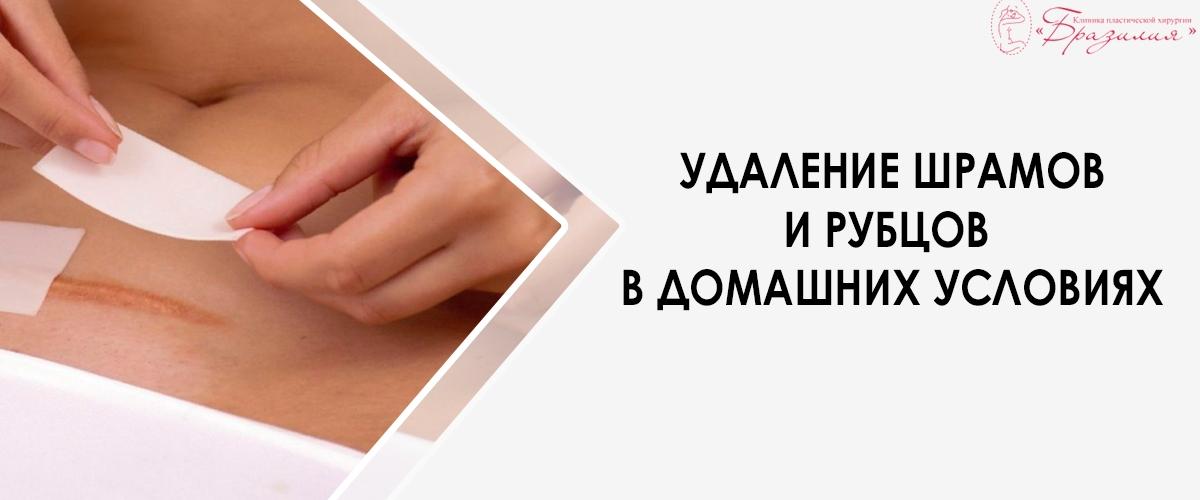 Удаление шрамов и рубцов в домашних условиях